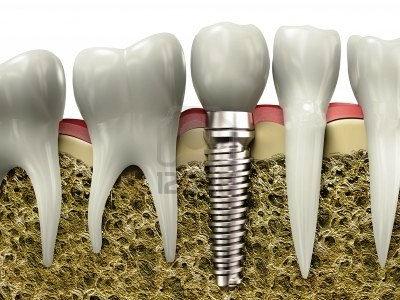 Samples of the dental implants